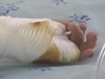 Una de las manos del niño quemado por su madre