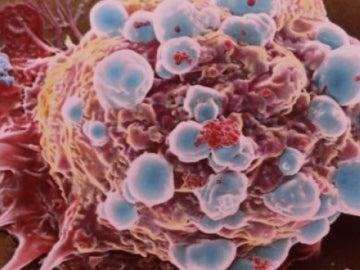 Célula cancerosa de cáncer de mama