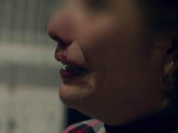 """Una mujer, después de pelearse con la ex esposa de su novio: """"Empezó a tirarme de los pelos, a insultarme"""""""
