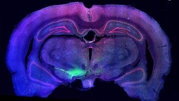 El trasplante de neuronas dopaminérgicas podría revertir el daño que el párkinson hace en estas células
