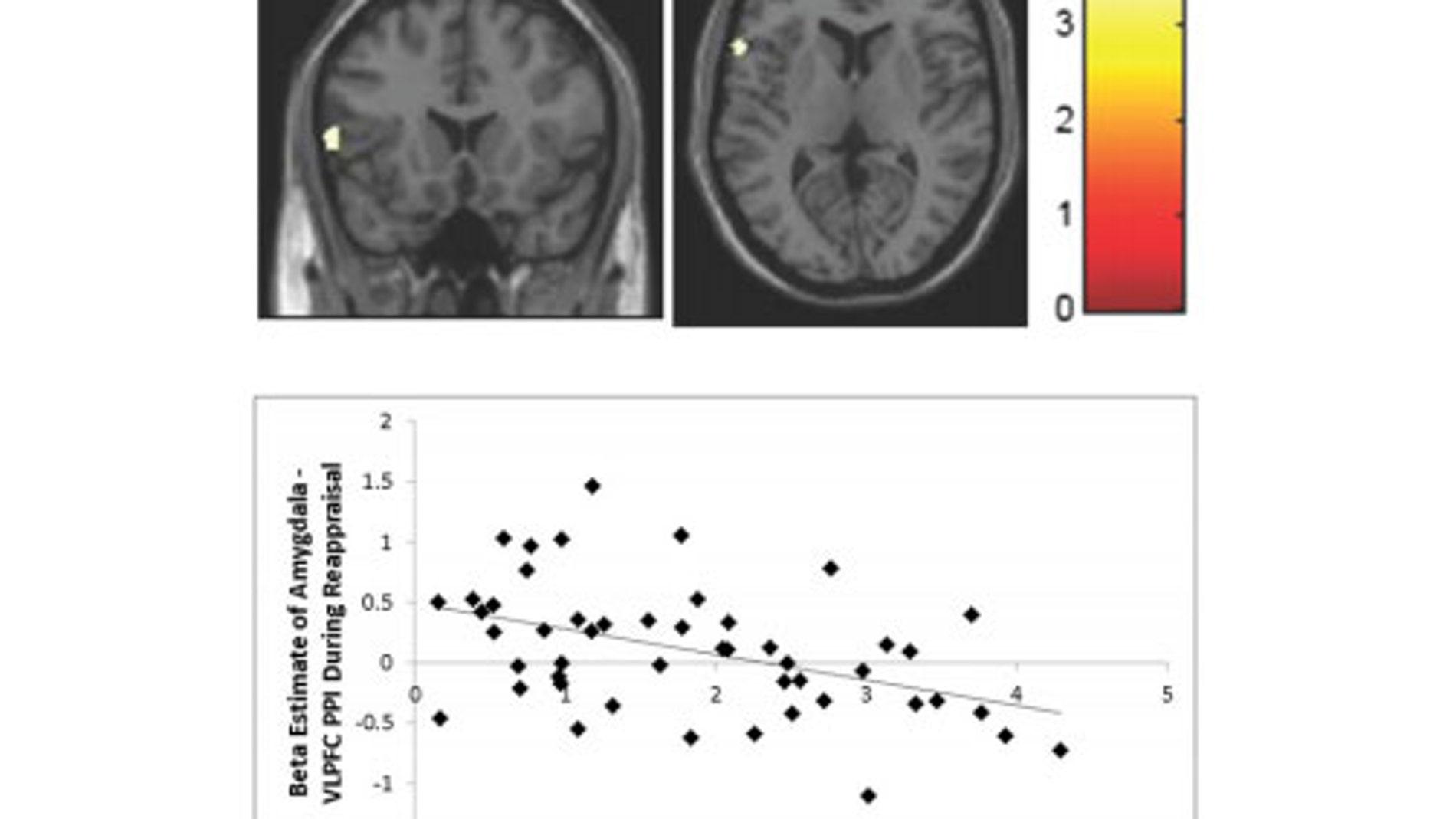 Escáneres cerebrales que prueban los efectos de la pobreza infantil en el cerebro