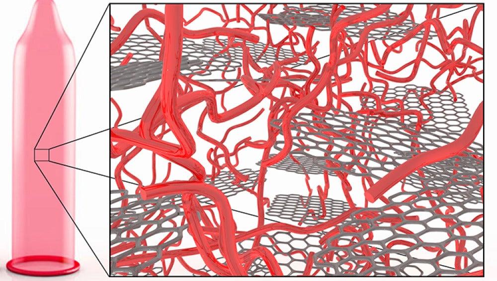 La Universidad de Manchester quiere mejorar los preservativos con nanomateriales