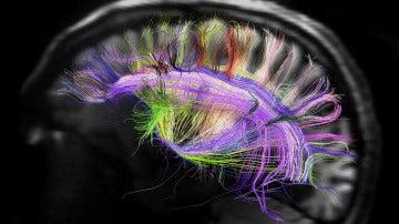 Recreación de algunas conexiones cerebra