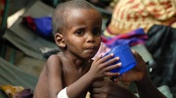 Niño afectado por la crisis alimentaria en Somalia