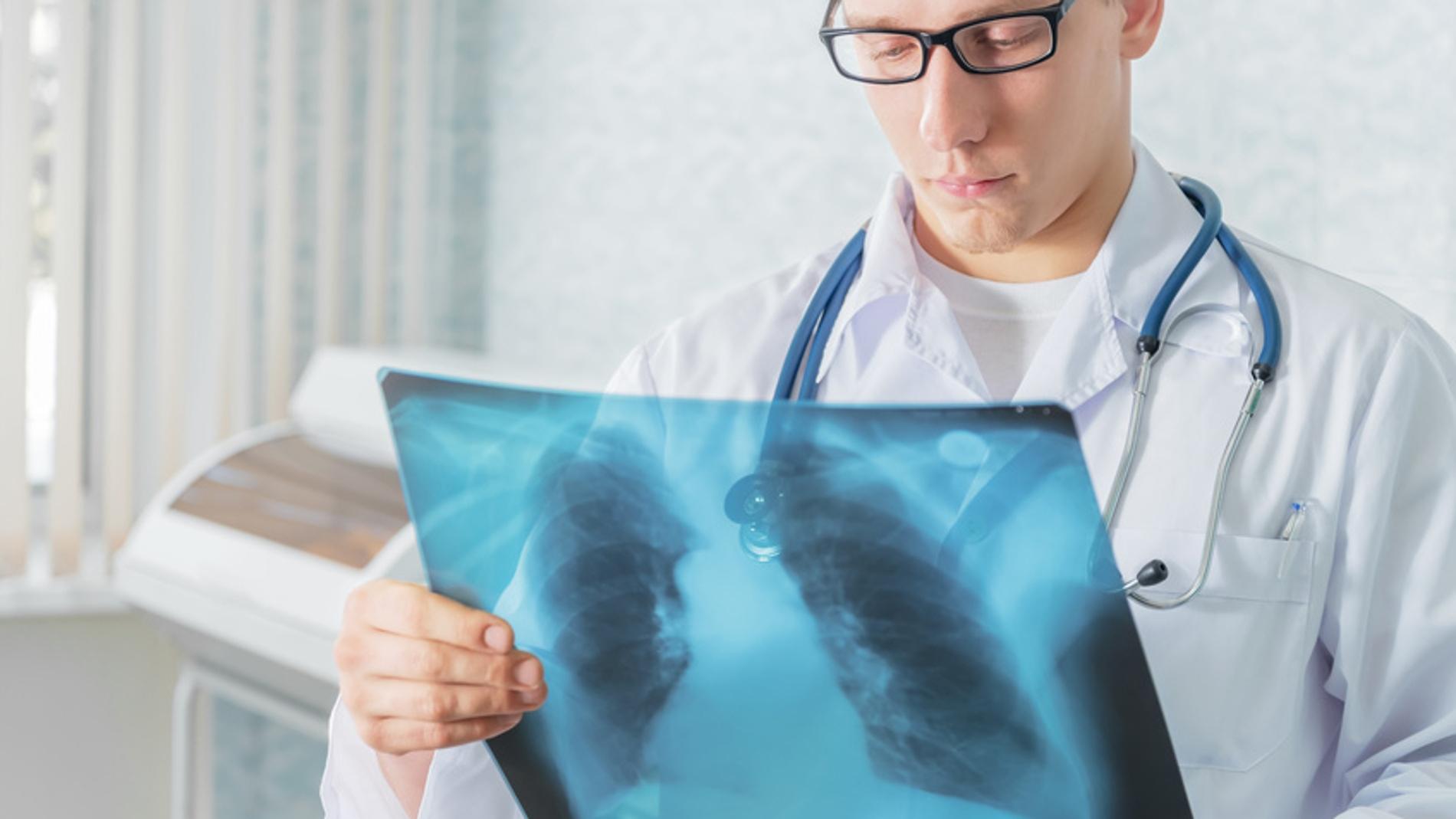 Un médico mira una radiografía de un pac