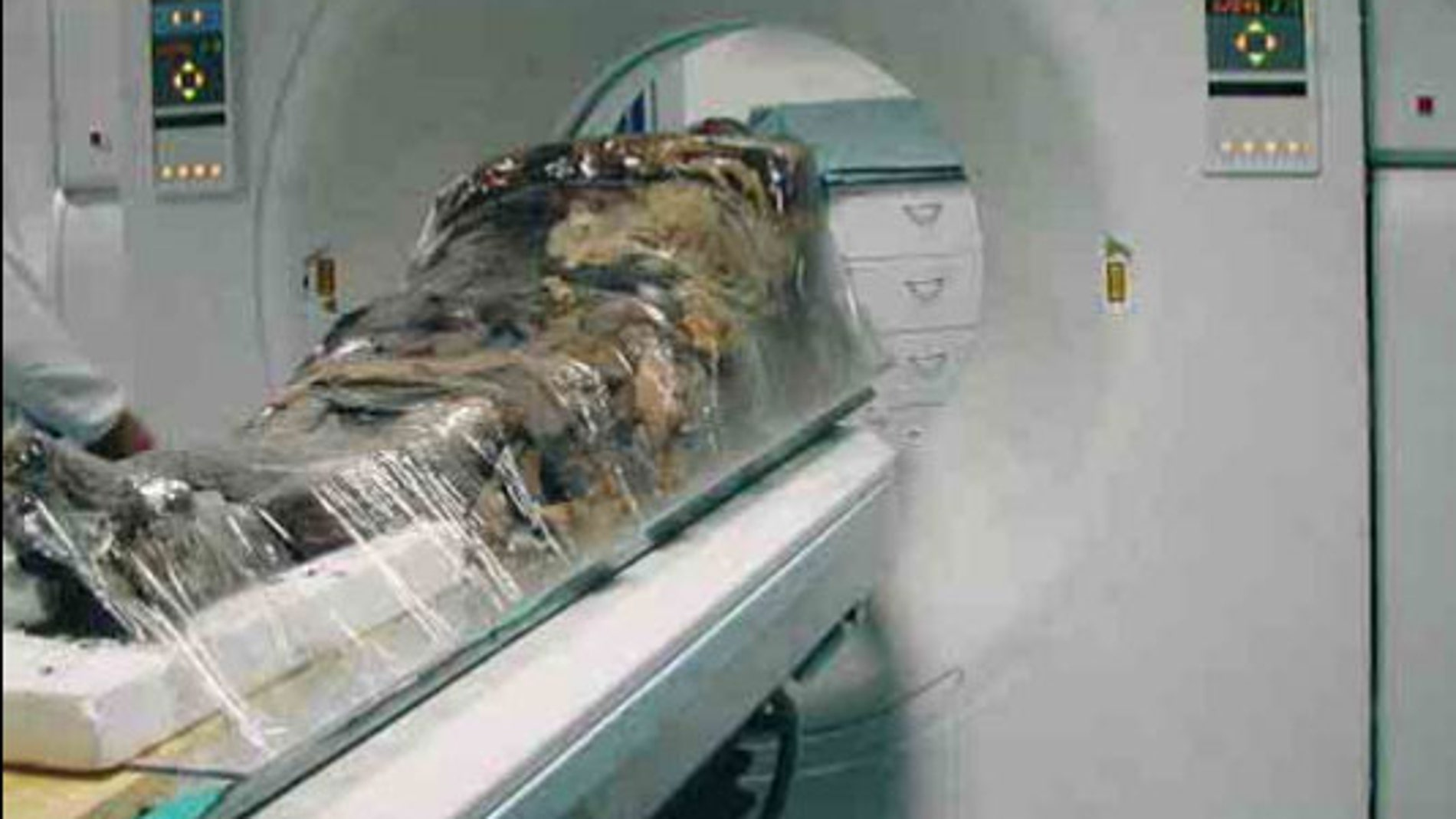 La momia de Cangrande analizada en Pisa