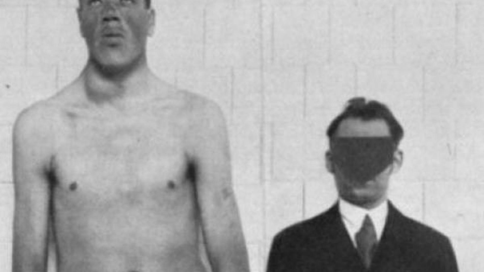 Los rasgos faciales de Rainer, a la izquierda, denotan gigantismo