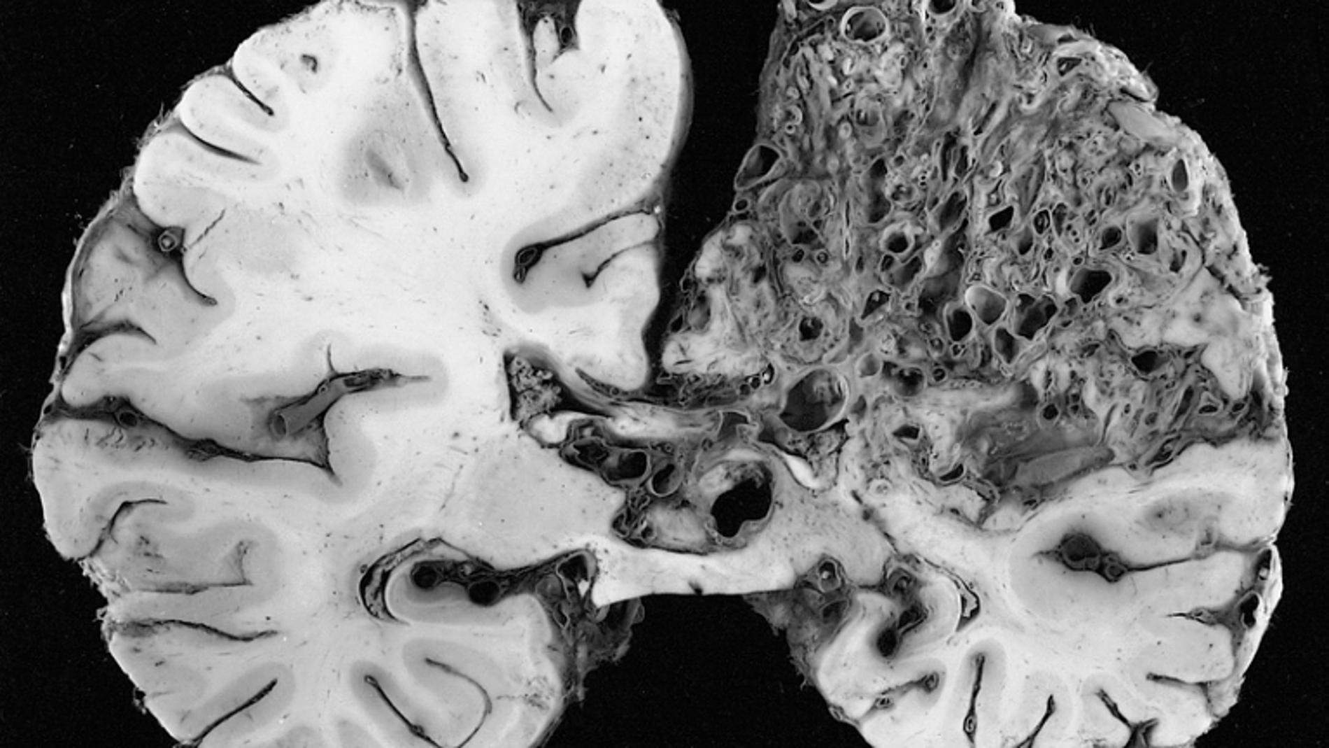 Deformación arteriovenosa en el hemisfer