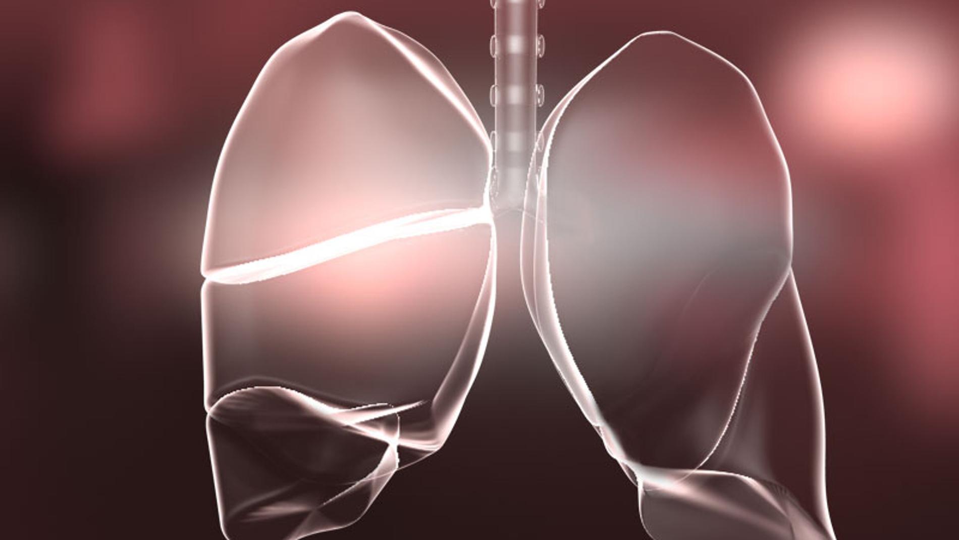 La insuficiencia respiratoria es común e