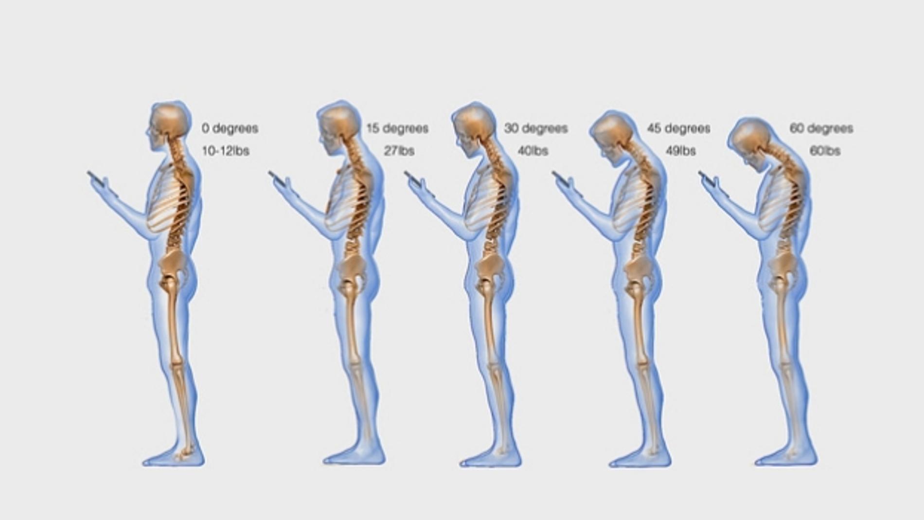 Text Neck o dolor cervical por consultar el móvil