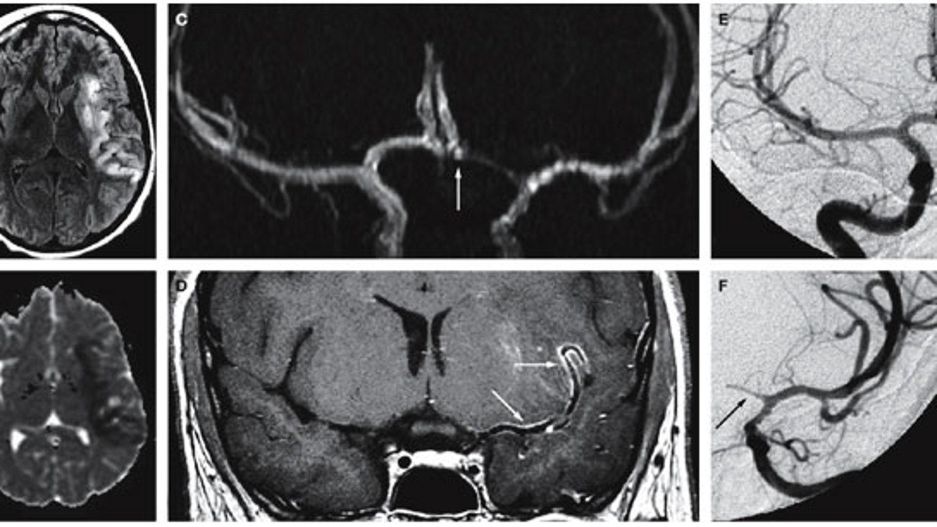 Paciente de 18 años con infarto y vasculitis cerebral producida por la cocaína