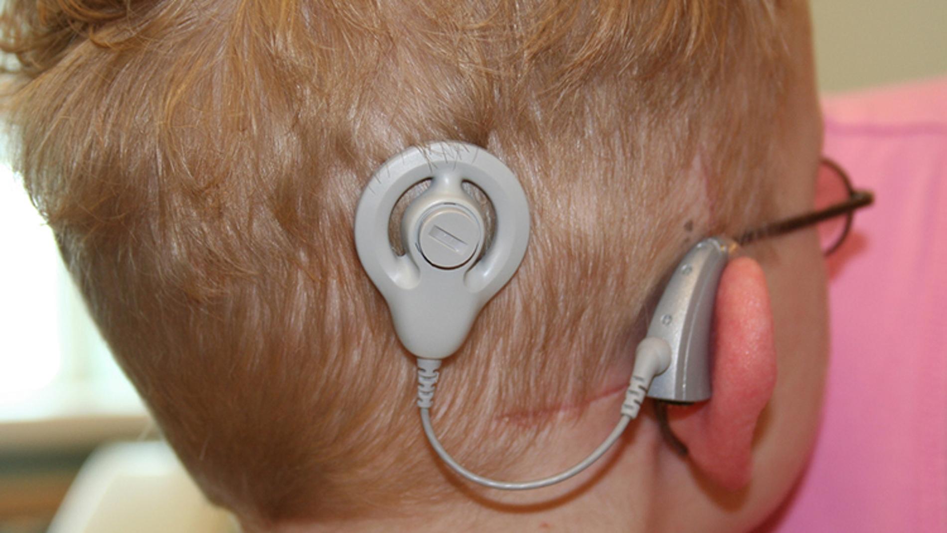 El beneficio de los implantes cocleares