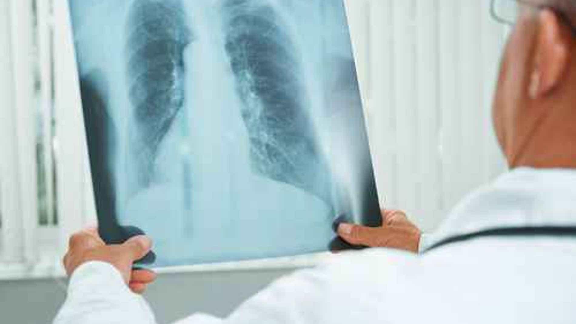 La hipertensión pulmonar es una enfermed