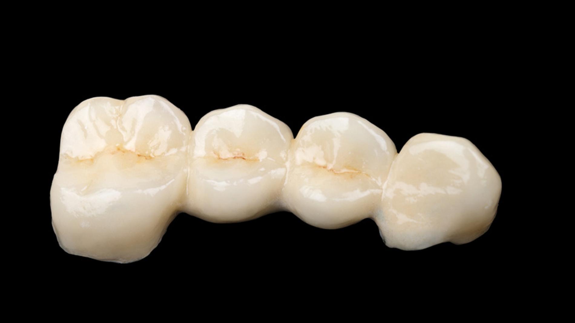 El esmalte que recubre nuestros dientes
