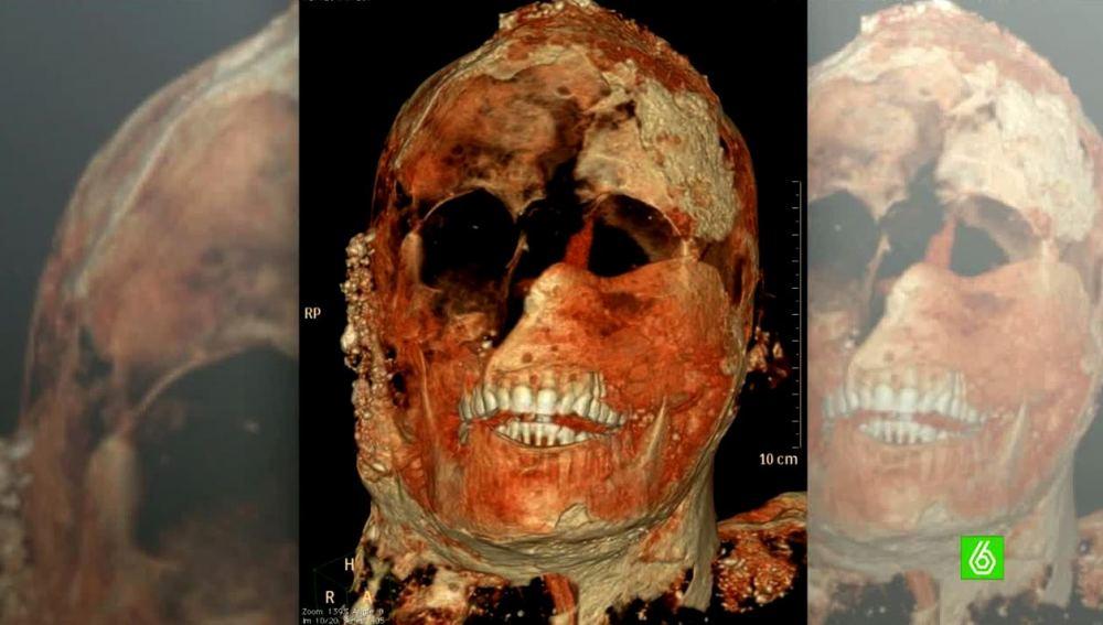 Momia de Pompeya