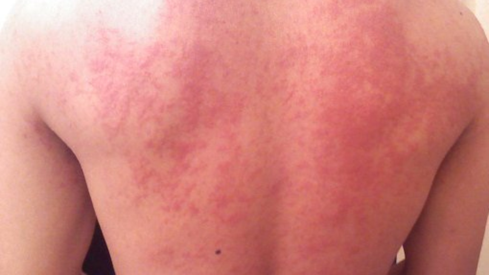Eczema en la espalda