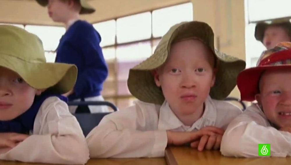 Niños albinos en África