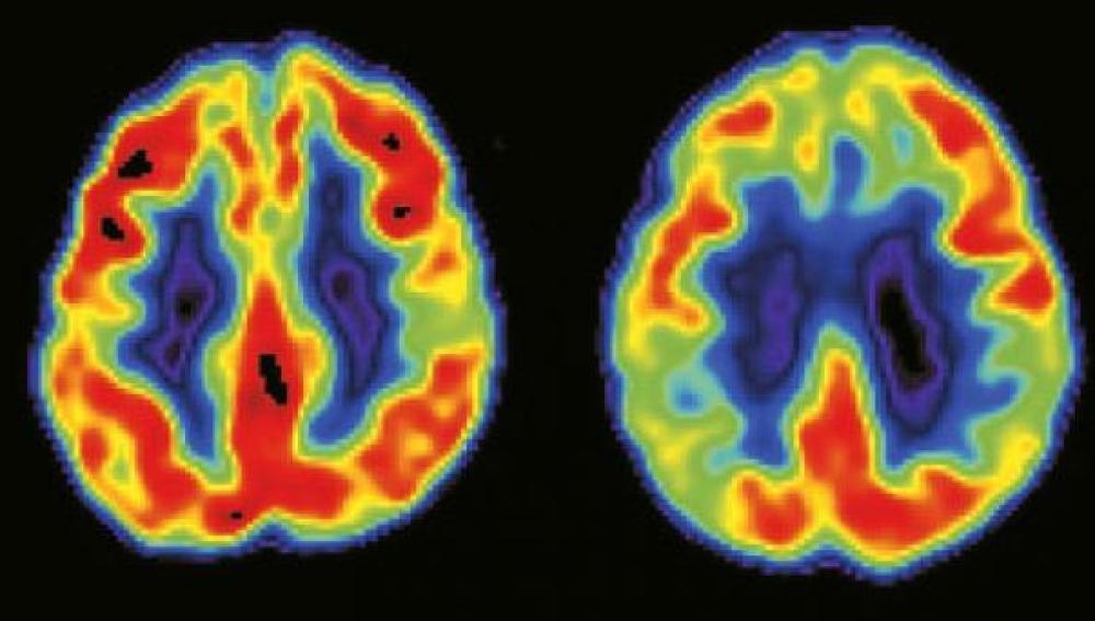 La modulación del rechazo emocional por parte del cerebro