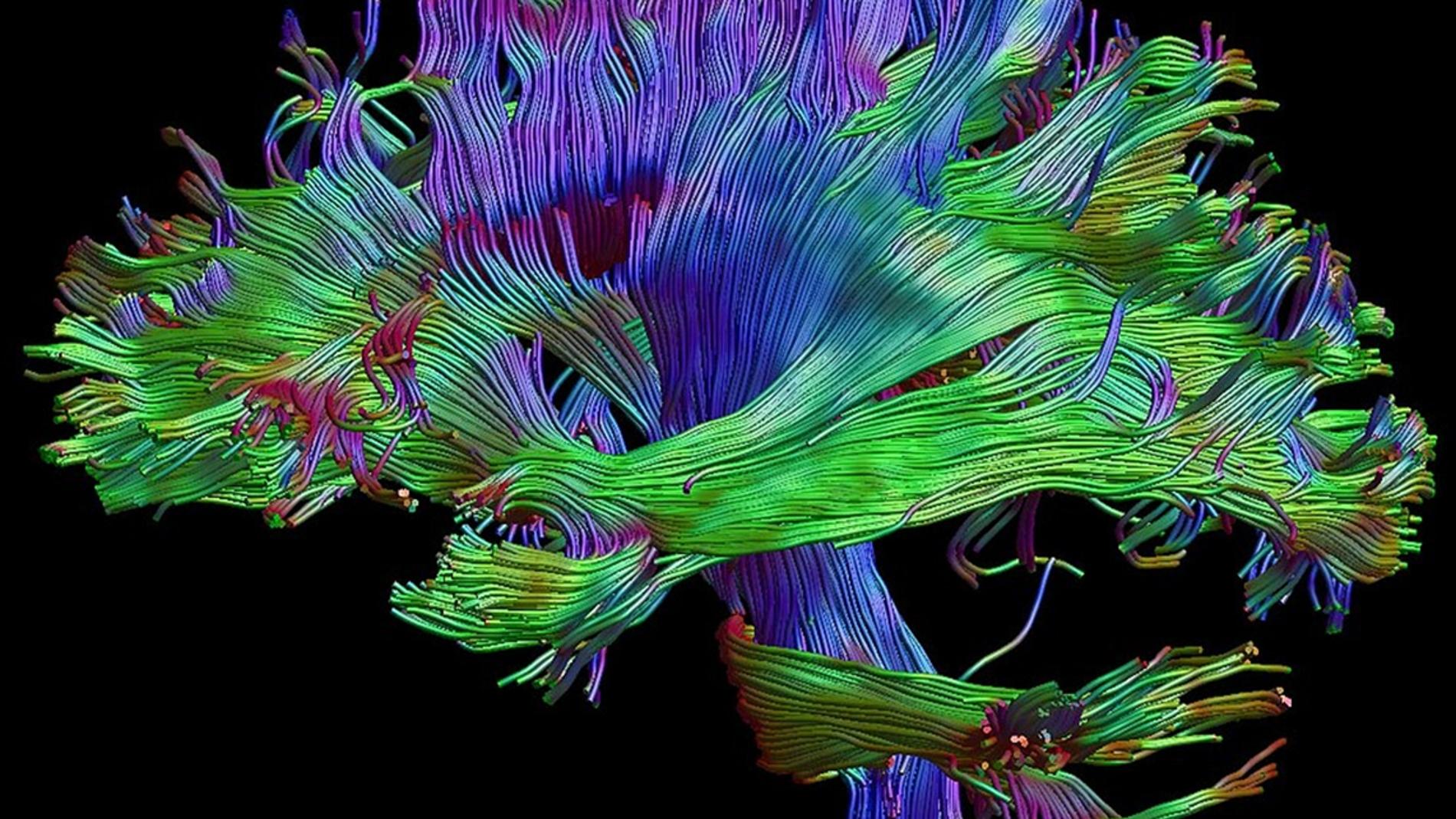 imagen de cerebro generada a partir de r