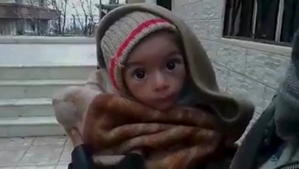 Bebé desnutrido en la ciudad de Madaya