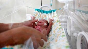 Bebé recién nacido en Brasil