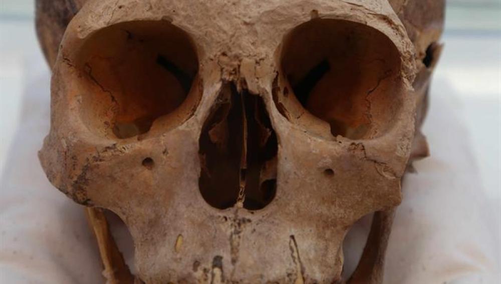 Fotografía cedida del cráneo de una mujer, de unos 30 a 35 años y de una estatura no mayor al metro y medio