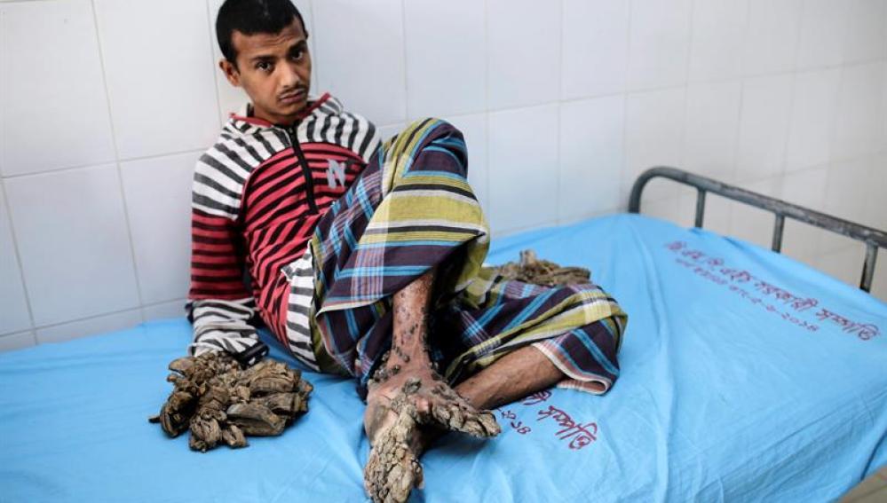 Paciente diagnosticado con epidermodisplasia verruciforme