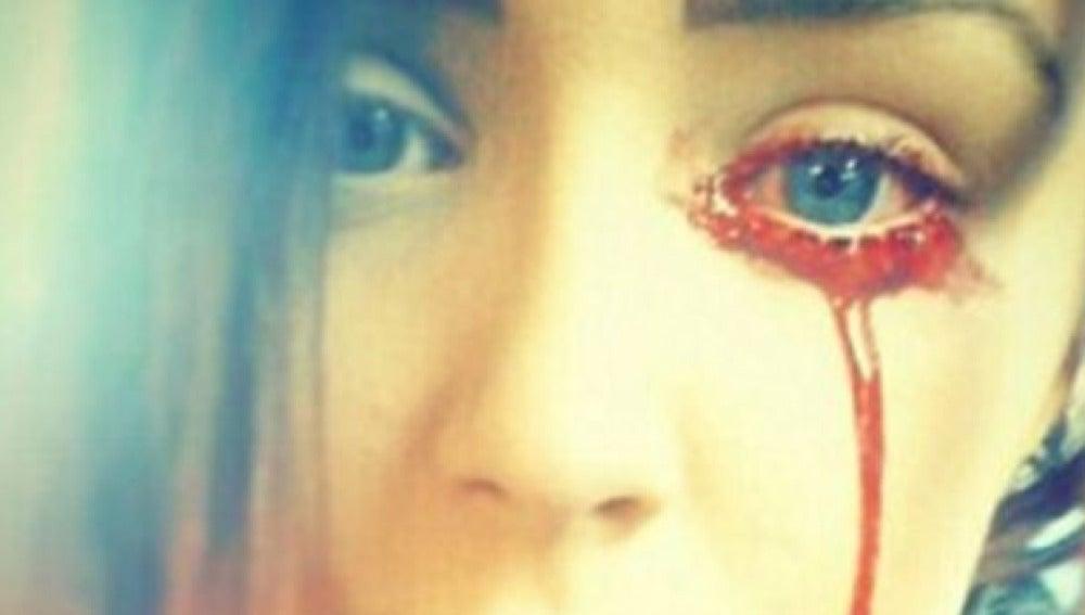 Imagen de la joven sangrando por un ojo
