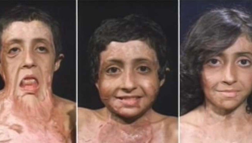Zubaida, una niña con el rostro quemado tras un accidente