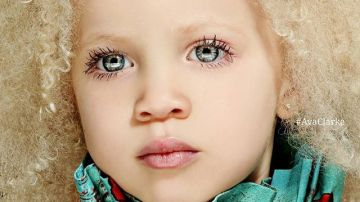 Una niña albina de raza negra revoluciona el mundo de la moda
