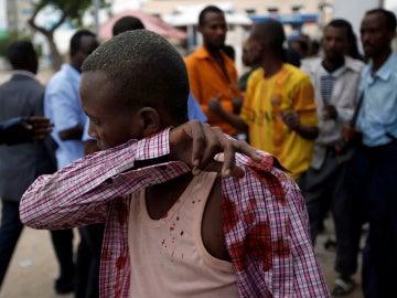 Heridos en el ataque terrorista en Mogadiscio
