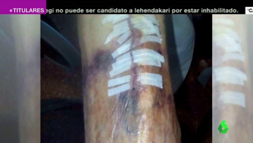 """Frame 37.690248 de: Denuncian agresiones a los ancianos en una residencia de San Sebastián de los Reyes: """"No tienen humanidad"""""""