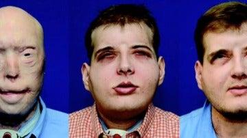 Frame 19.108913 de: Se cumple un año de la realización del primer trasplante de cara completo