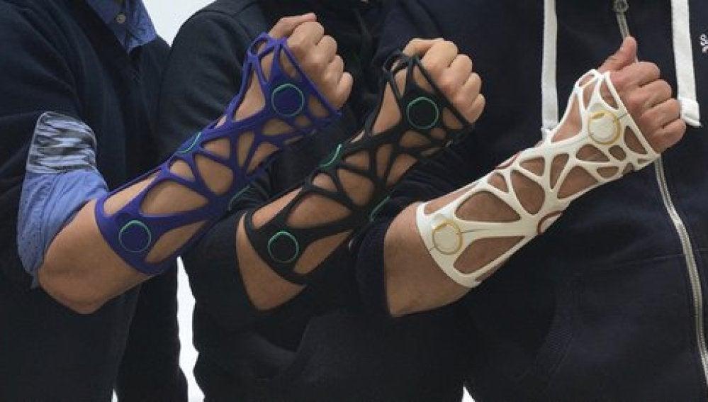 Xkelet, el invento español que cambiará la traumatología