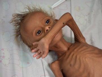 Un niño yemení desnutrido
