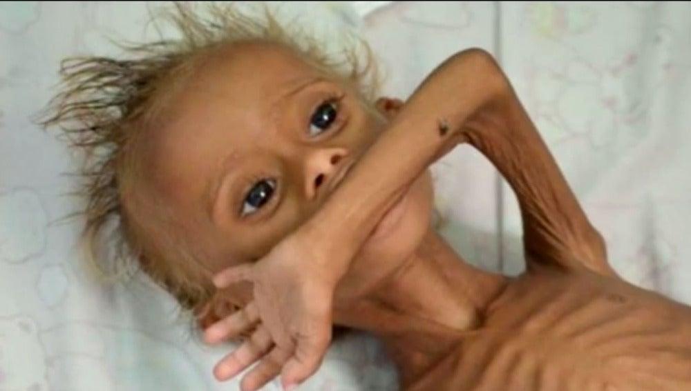 Un bebé desnutrido en Yemen