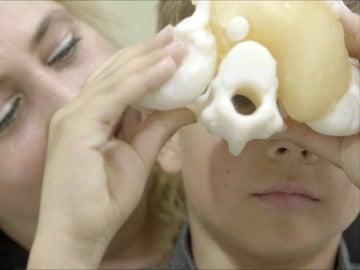 Marc, uno de los primeros niños del mundo operados con la técnica de impresión 3D