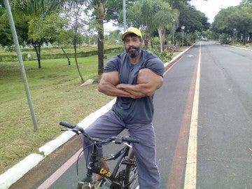 Valdir Segato, el hombre que se inyecta aceite para que sus bíceps crezcan