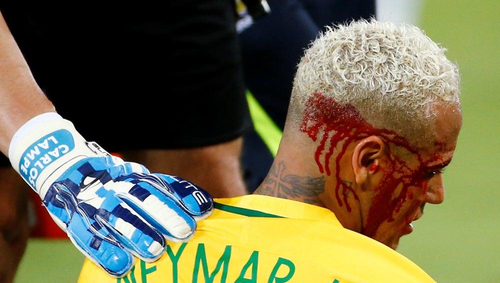 Neymar, con el rostro ensangrentado tras recibir un codazo