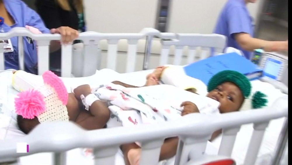 Dos siamesas gemelas son separadas en Memphis