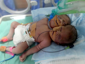 Las dos gemelas siamesas nacidas en Gaza