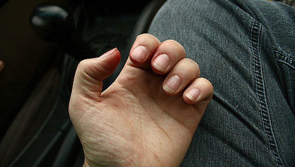También nos mordemos las uñas cuando estamos aburridos o enfadados.