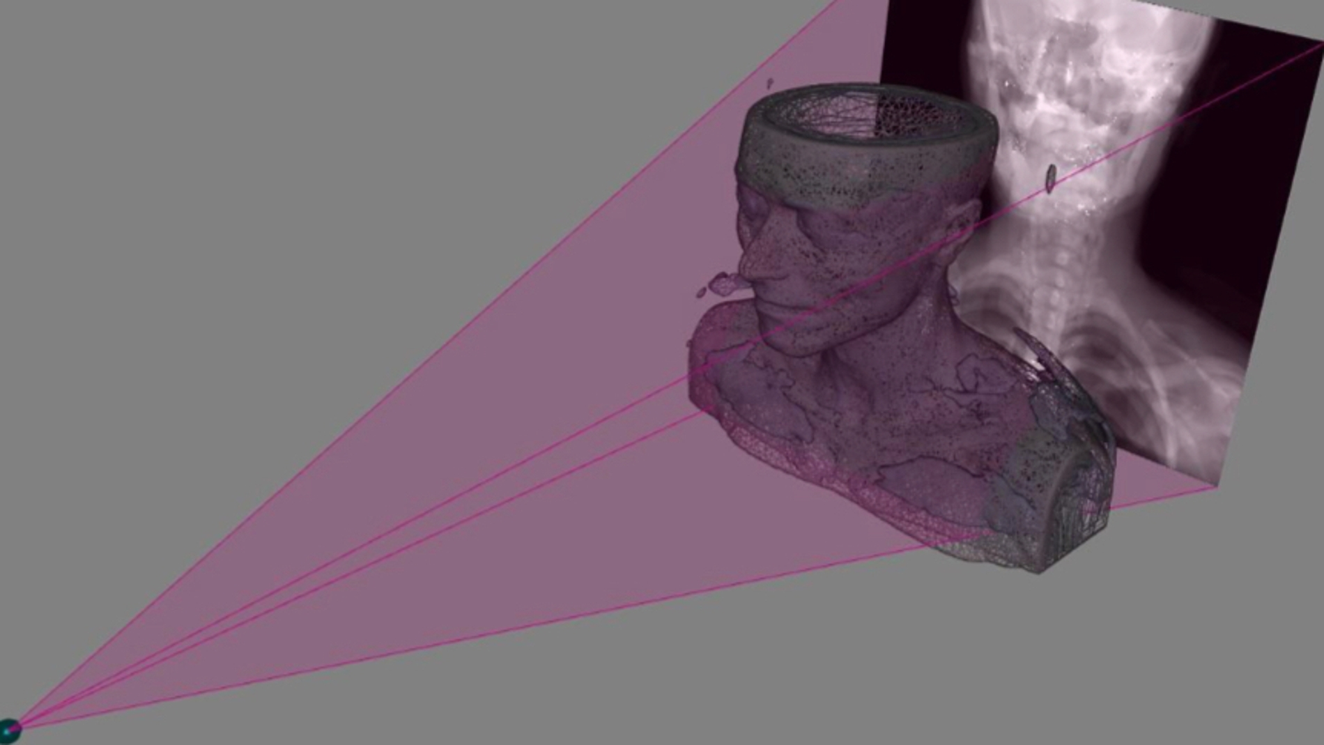 Figuración virtual del sistema que obtiene imágenes 3D a partir de radiografías