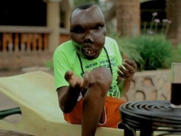 """Godfrey Baguma, el hombre """"más feo de Uganda"""" que ha conseguido ser cantante"""