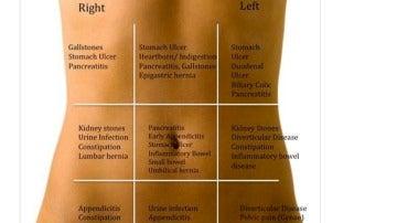 dolor en el costado izquierdo inferior sobre la cadera