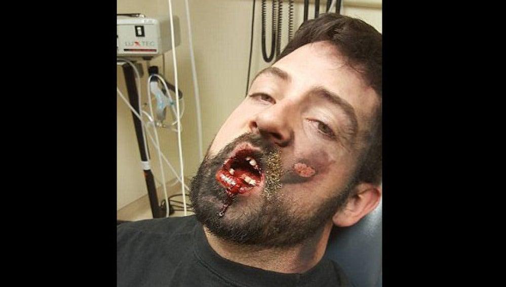 Andrew Hall perdió siete dientes