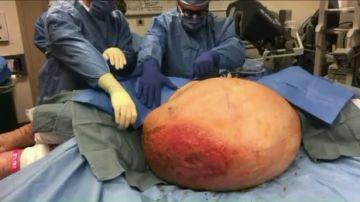 Una mujer con sobrepeso descubre que tiene un tumor de más de 63 kilos