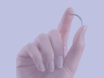 Essure es un pequeño muelle que se usa como anticonceptivo