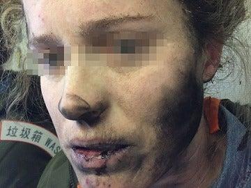 Una mujer con lesiones faciales después de que los auriculares que llevaba explotaran