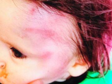 Un bebé de diez meses sufre un fuerte golpe de un ladrillo en la cabeza debido a una disputa entre familias